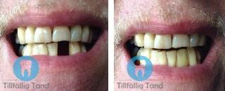 erfarenhet tillfallig tand