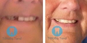 falsk tand