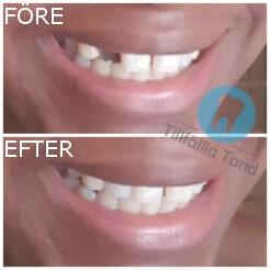 fore efter tillfallig tand