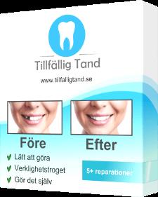 tillfallig tand produkt