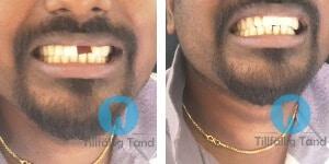 tillfallig tand