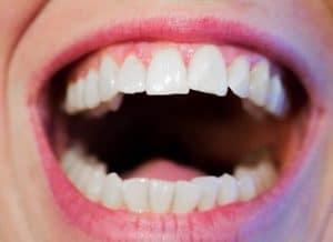 Sätt att åtgärda spetsiga tänder