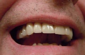 ny tand
